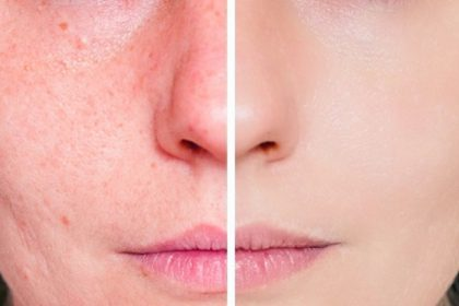 Macchie post acne: i miei consigli per eliminarle!