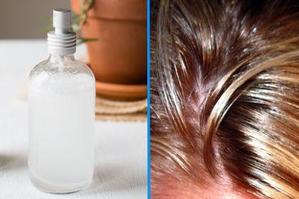 Spray per capelli grassi, sebo-regolatore!