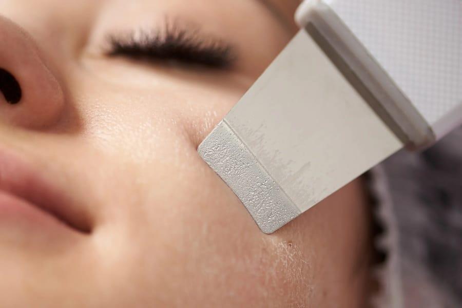 skin scrubber ultrasuoni amazon recensioni