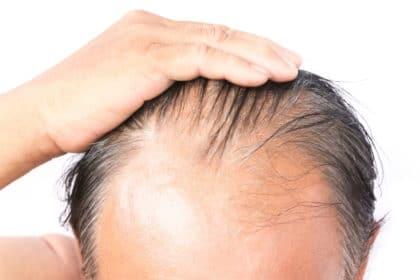 Alopecia androgenetica, nascondiamola con la tricopigmentazione